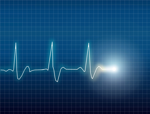 EKG computer recording