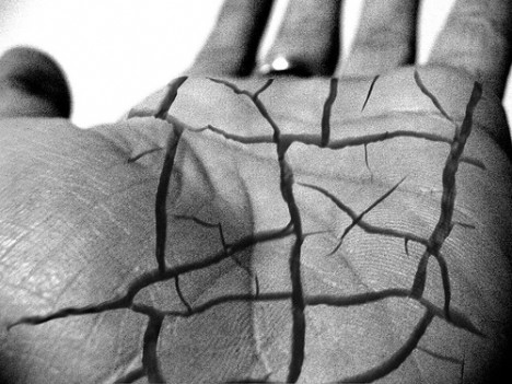 Hand with cracks