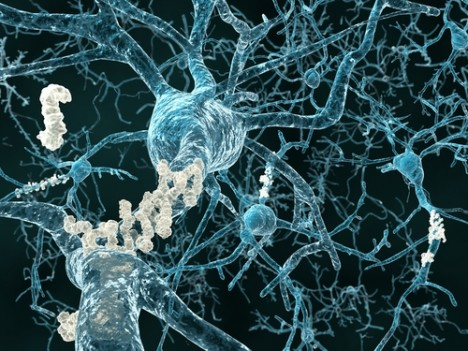 Neurons with amyloid plaques