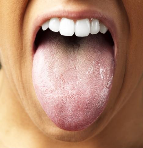 Tongue closeup