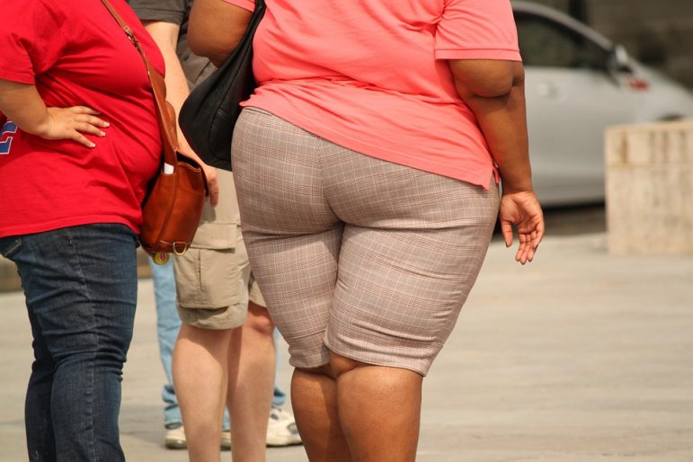 obesity-brain