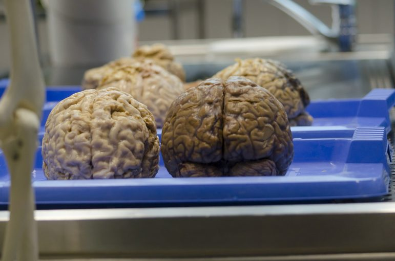 the-brain-470742_1280